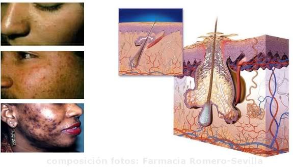 tratamiento-lullage-contra-el-acne